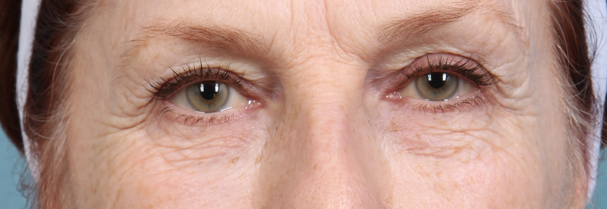 Restylane Eyelid Lift Before
